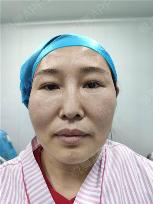 双眼皮修复手术当天_眼整形失败修复手术当天_眼部整形手术当天_温水煮红枭分享图片3