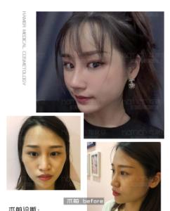 可玫尔刘喆骐【鼻修复】案例分享