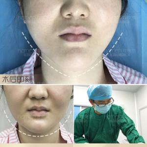 小V脸——精致感的重要特征