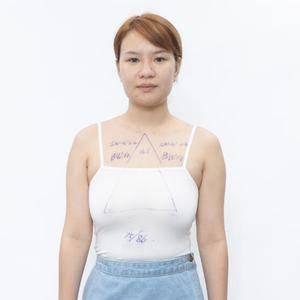乳房下垂矫正日记