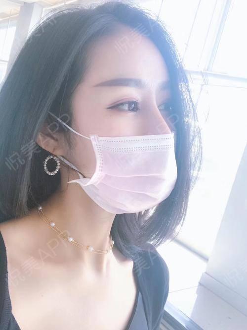 很久没来更新日记了,今天又来了~~刚刚去泰国玩了一圈,现在又回深圳准备上班了,之前在阳光做的眼部多项手术效果也还是很好,...