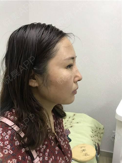假体隆鼻修复术后7天_隆鼻失败修复术后7天_鼻部整形术后7天_温水煮红枭分享图片5