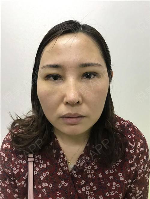 假体隆鼻修复术后7天_隆鼻失败修复术后7天_鼻部整形术后7天_温水煮红枭分享图片4