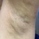 现在看腋下部位是看不出什么东西的,所以说无疤是肯定的了。然后有宝宝私信问,这个项目痛不痛。这个问题我...