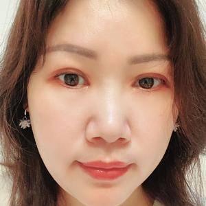 田雯双眼皮修复术后190天第3页图