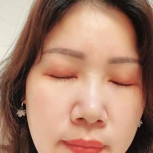 田雯双眼皮修复术后190天第2页图