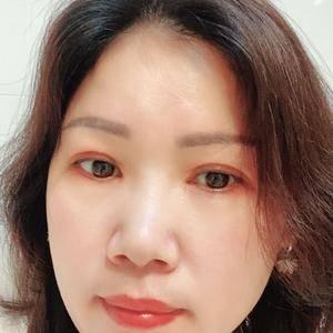 田雯双眼皮修复术后190天第1页图