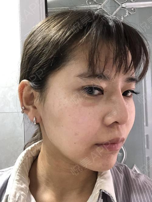 像素激光术后35天_激光祛疤术后35天_去疤痕痘印术后35天_皮肤美容术后35天_悦Mer_268286分享图片2