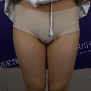 吸脂10选3(大腿、臀下、膝盖)