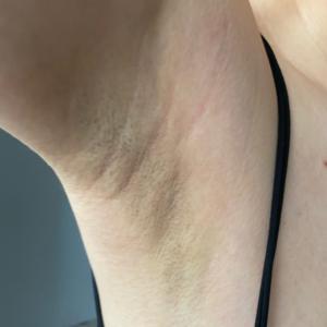 顾建成做的微波除腋下异味