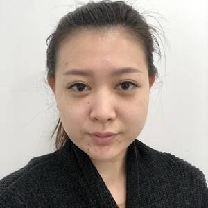 硅胶隆鼻术