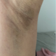 找的顾建成医生,做的miraDry微波祛腋汗除异味已经快一个月了。这个项目真的是个黑科技,效果很好。不仅有...