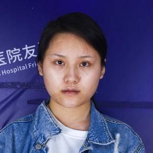 下颌角瘦脸手术