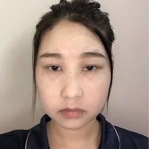 面部埋线提升