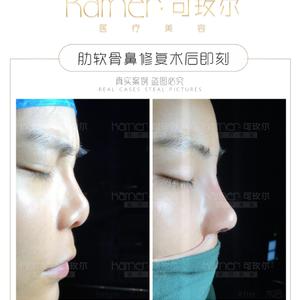 高难度修复——L型硅胶挛缩鼻