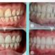 无论如何,牙贴面都需要更换。虽然牙贴面可以用粘结剂牢牢固定在牙齿上,但贴面松弛脱落的情况亦有发生。如...