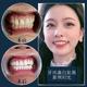 瓷贴面是闺蜜推荐做的。牙齿齿缝有些大,特别层次,个人觉得衬 不起我花重金购入的各种口红,哈哈哈(我是...