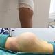 我做的自体脂肪丰臀+水动力后腰吸脂,昨天刚做完,现在还在住院中,护士当时帮我拍了几张照片,还有我手术...