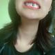 带牙套21天了,拔牙后第11天,感觉没有变化,好捉急啊,期待早点好起来/微笑
