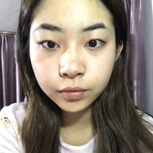 双眼皮术后恢复效果
