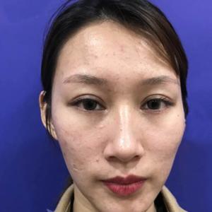 安徽合肥韩美整形外科医院-皮肤检测