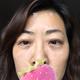我是在5月12号做的微孔介入去眼袋加眶隔释放填泪沟,到今天第22天了,放的照片上面我都有标注第几天,眼袋...