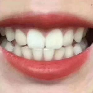 牙齿hin重要