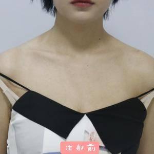 国产瘦肩针