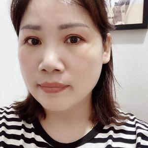 田雯双眼皮修复术后200天第2页图