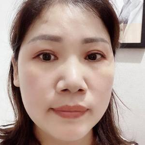 田雯双眼皮修复术后200天第1页图