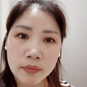 田雯双眼皮修复术后210天第3页图