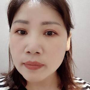 田雯双眼皮修复术后210天第1页图