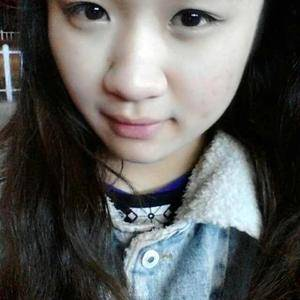 杭州薇琳切开双眼皮+祛皮祛脂+翘睫