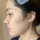 面部吸脂术后第18天!面部处于一个持续消肿的状态,不过下颌角的地方还是看的出,慢慢有轮廓线出来了耶,真...