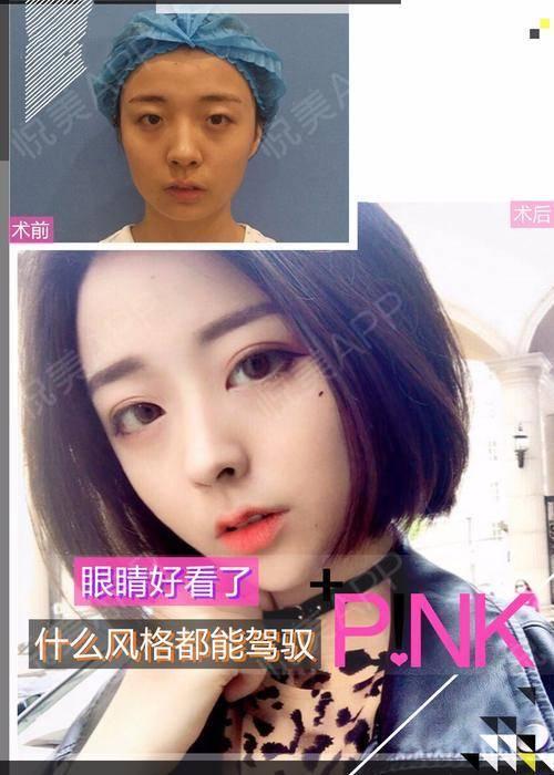 【南京美贝尔-park双眼皮】一千双眼睛就有一千种不同的风情,虽说单眼皮女孩也能充满个性与魅力,但漂亮的眼睛总是相似的。...