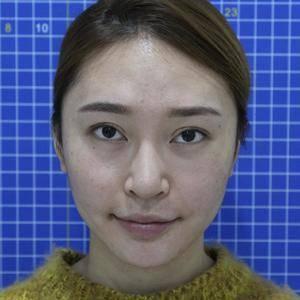 鼻綜合恢復過程