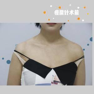 肉毒素瘦肩 直角肩养成