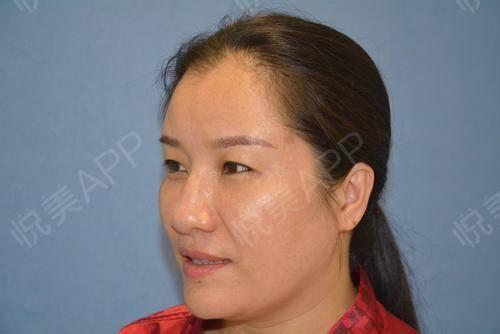 超声刀术后90天_紧致提升术后90天_除皱·抗衰老术后90天_莎莎分享图片2