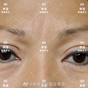 20多年,终于找到了适合自己的双眼皮 修复也是蜕变