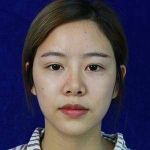 鼻综合恢复过程