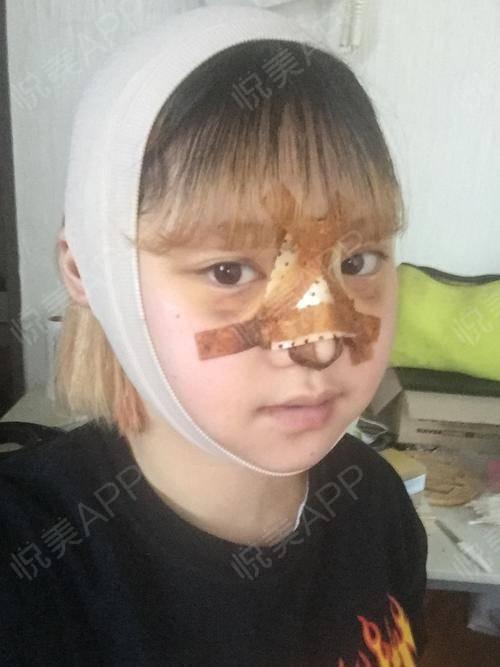 V-LINE瓜子脸手术术后3天_磨骨术后3天_面部轮廓术后3天_安逸分享图片1