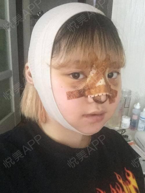 V-LINE瓜子脸手术术后3天_磨骨术后3天_面部轮廓术后3天_安逸分享图片3