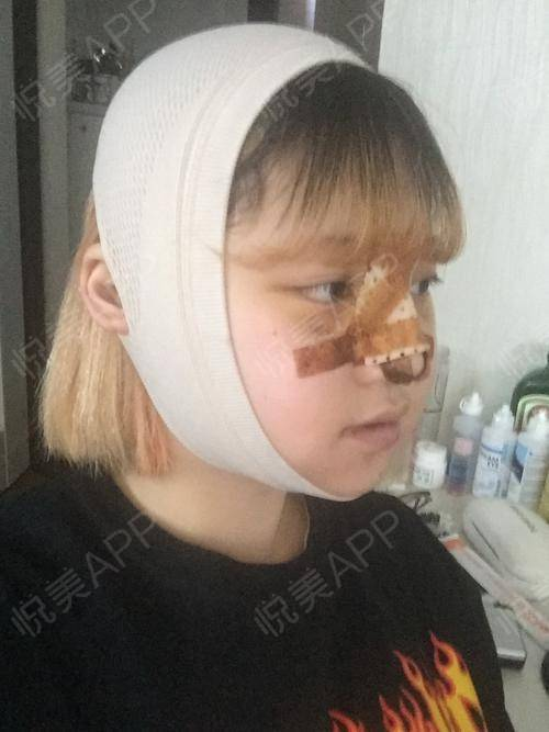 V-LINE瓜子脸手术术后3天_磨骨术后3天_面部轮廓术后3天_安逸分享图片2