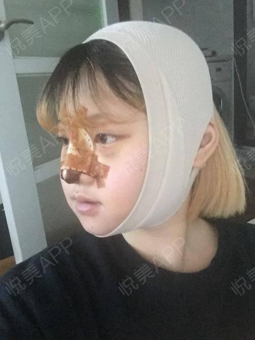 V-LINE瓜子脸手术术后3天_磨骨术后3天_面部轮廓术后3天_安逸分享图片5