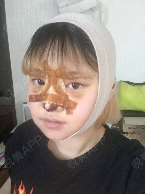 V-LINE瓜子脸手术术后3天_磨骨术后3天_面部轮廓术后3天_安逸分享图片6