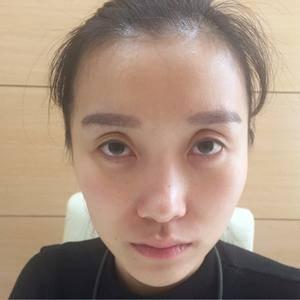 隆鼻整形恢复过程