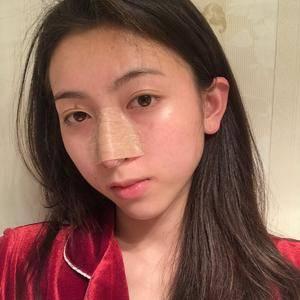 悦Mer_879802长沙美莱-鼻修复术后3天第3页图