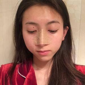 悦Mer_879802长沙美莱-鼻修复术后3天第2页图