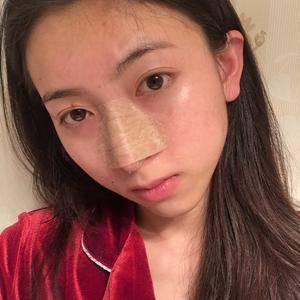 悦Mer_879802长沙美莱-鼻修复术后3天第1页图