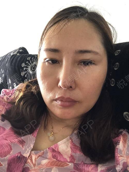 假体隆鼻修复术后25天_隆鼻失败修复术后25天_鼻部整形术后25天_温水煮红枭分享图片2